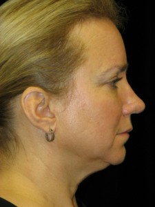 Before chin implant