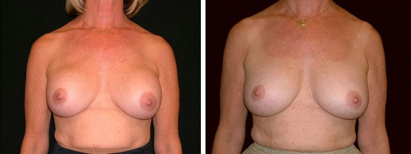 Before and After Breast Revision