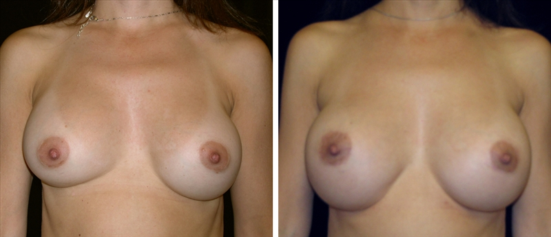 Napa, California - A 35-year-old resident of Napa, California who presents to the Novato office in Marin County for breast revision surgery. Her initial breast augmentation was with 300cc normal saline implants and developed early breast contracture and mal-position on her