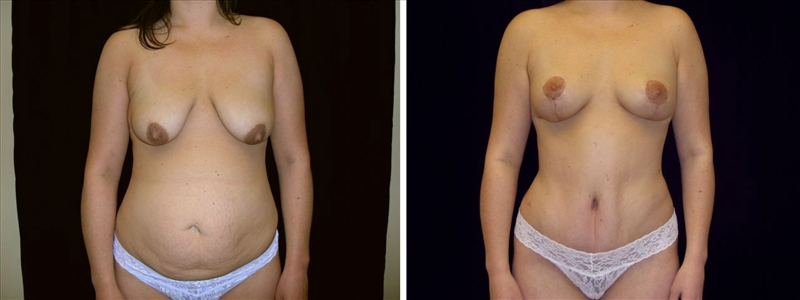 Vertical Breast Lift
